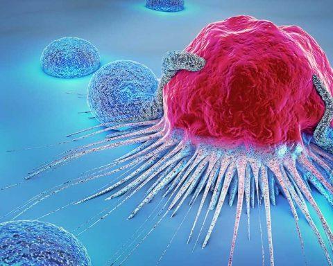 Macam-Macam Kanker Ganas dan Paling Mematikan di Dunia
