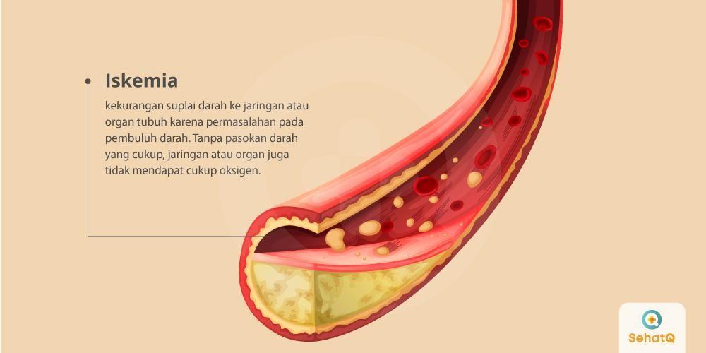 Penyakit Yang Menyerang Peredaran Darah